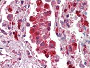 AP22585PU-N - S100A9 / Calgranulin-B / MRP14