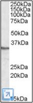 AP22586PU-N - PPP4C