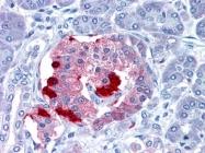 AP22830PU-N - Somatostatin / SST