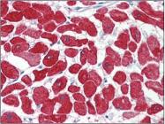 AP22593PU-N - Cardiac Troponin I