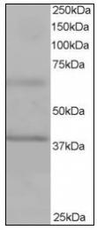AP22527PU-N - ABTB1