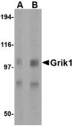 AP22601PU-N - Glutamate receptor 5 / GLUR5