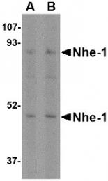 AP22603PU-N - SLC9A1 / NHE1