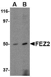 AP22606PU-N - Zygin-2