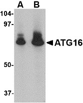 AP22610PU-N - APG16L / ATG16L1