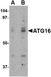 AP22611PU-N - APG16L / ATG16L1