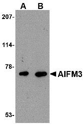AP22615PU-N - AIF3 / AIFM3