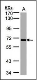AP23177PU-N - PLK1