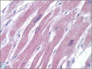 AP23173PU-N - ACTR2