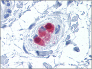 AP23172PU-N - Calretinin
