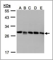 AP23171PU-N - Rab GDI beta / GDI2