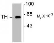 AP22626PU-N - Tyrosine 3-monooxygenase (TH)