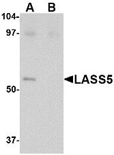 AP22658PU-N - LASS5