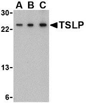 AP22662PU-N - TSLP
