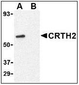 AP22663PU-N - CD294 / GPR44