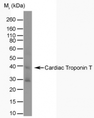 AM01246PU-N - Cardiac Troponin T
