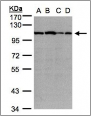 AP23169PU-N - Alpha-actinin-2 / ACTN2