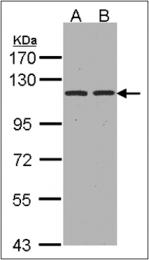 AP23168PU-N - CD249 / Glutamyl aminopeptidase
