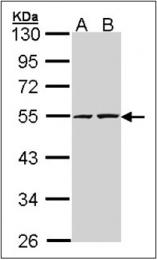 AP23165PU-N - RUVBL2 / TIP49B