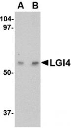 AP22675PU-N - LGI4