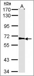 AP23156PU-N - AGPS / AAG5