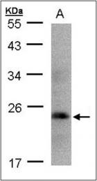 AP23152PU-N - Somatotropin / Growth Hormone / GH1