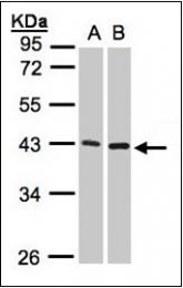 AP23149PU-N - MMP-3