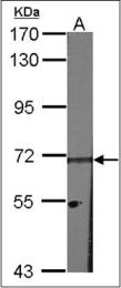 AP23145PU-N - Heparanase-2 / HPA2