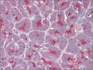 AP23140PU-N - TPCN2