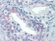 AP22688PU-N - CD178 / Fas Ligand