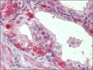 AP23136PU-N - Insulin-degrading enzyme