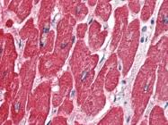 AP22707PU-N - alpha skeletal muscle Actin / ACTA1