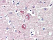 AP23128PU-N - DLGAP1 / SAPAP1