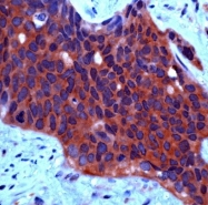 AP22713PU-N - HGF receptor