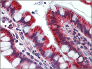 AP23123PU-N - Junctophilin-4 / JPH4