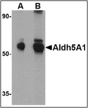 AP23122PU-N - ALDH5A1 / SSADH