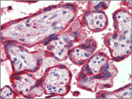 AP23121PU-N - Thrombospondin-1 (THBS1)