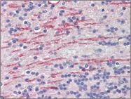 AP23113PU-N - CYP26A1
