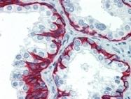 AP22726PU-N - Cytokeratin 5