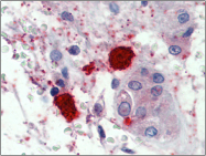 AP23108PU-N - Mast Cell Chymase
