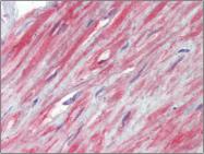 AP23103PU-N - TRPC1 / TRP1