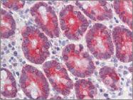AP23101PU-N - CLCA1