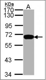 AP23098PU-N - HDAC1