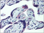 AP23093PU-N - CD186 / CXCR6