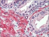 AP23092PU-N - Serotonin receptor 2C (HTR2C)