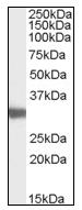 AP16795PU-N - LDHC