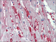 AP23087PU-N - Alpha-1A adrenergic receptor / ADRA1A