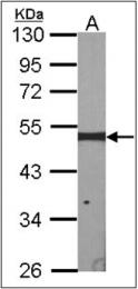 AP23086PU-N - ERCC8