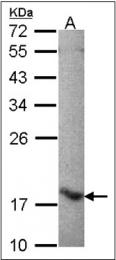 AP23079PU-N - ALOX5AP / FLAP