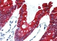 AP22738PU-N - Cytokeratin 20